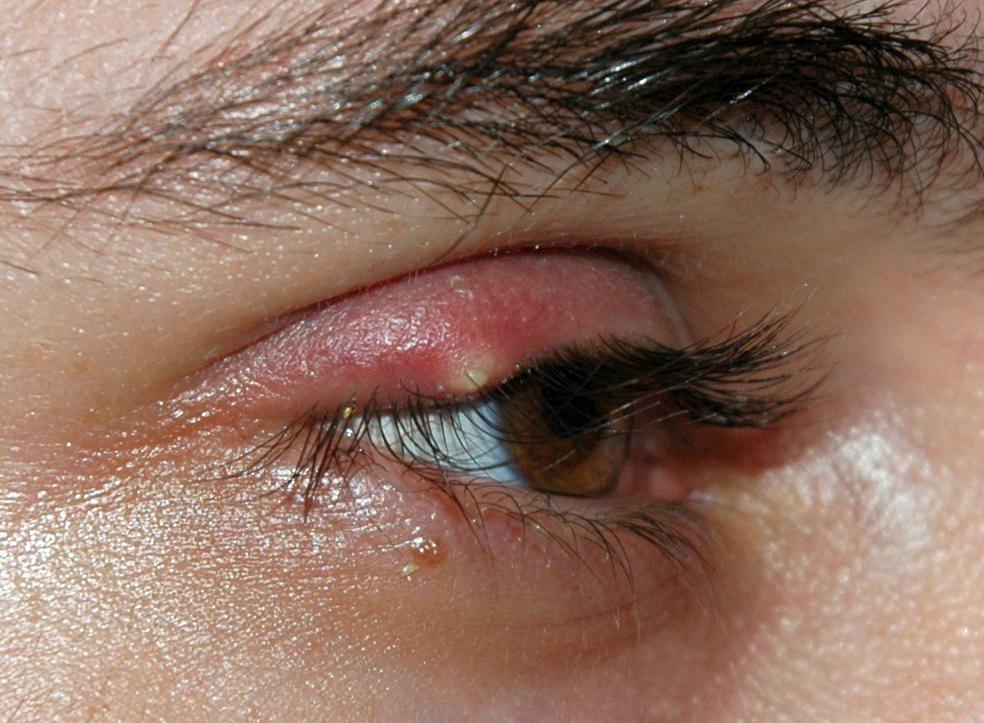 Obat Mata Bintitan Anak dan Ibu Hamil Manjur Ampuh