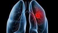 Mengatasi kanker paru-paru