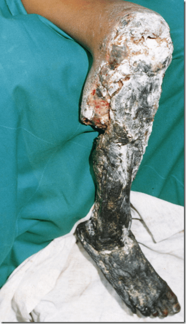Massive tissue damage from a Fer-de-lance or Lancehead snake bite