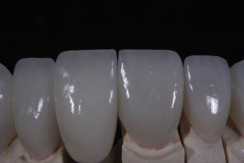 6. Anterior Implant Crown