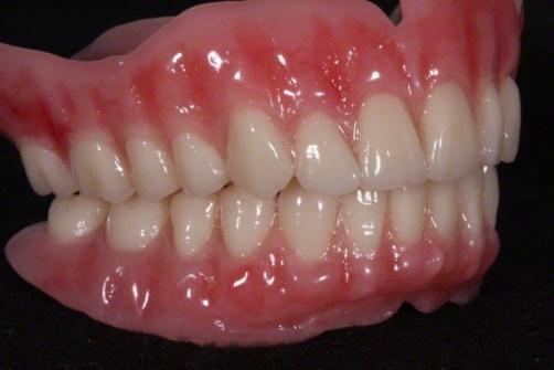 2,Strickland FOY™ Dentures