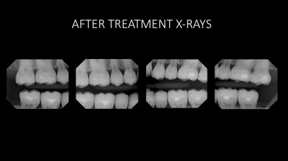 4. After Radiographs;Full Mouth Rehabilitation