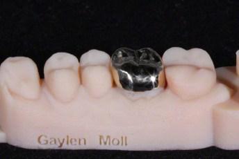 2. Gold Crown on  3D Printed Models
