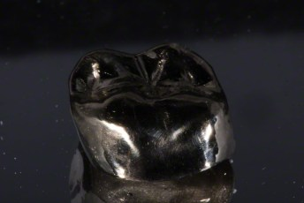 5. Gold Crown on  3D Printed Models