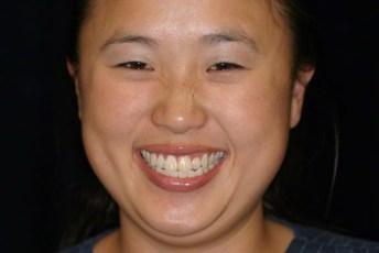 1.Before Full Face Smile