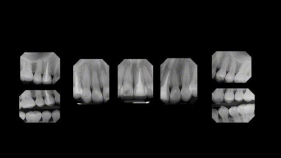6. Post Treatment Radiographs