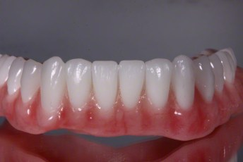 2.Complete Dentures with Naturalized Base