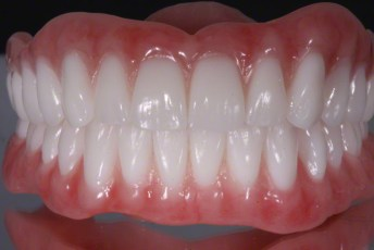 6.Complete Dentures with Naturalized Base