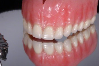 3.New You Denture