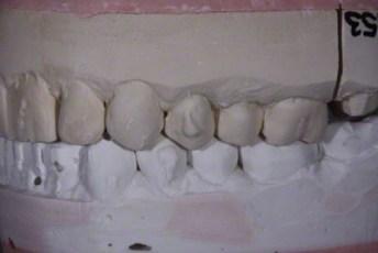 4.Model equilibration adjustment free crown & bridge