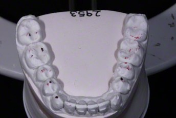 11.Model equilibration adjustment free crown & bridge