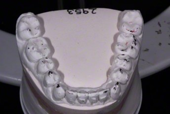 19.Model equilibration adjustment free crown & bridge