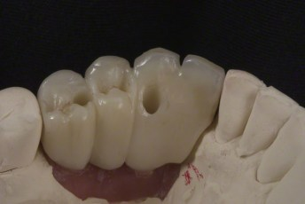 5.Ligual View Try-in on Model;Screw Retained Zirconia Implant Bridge