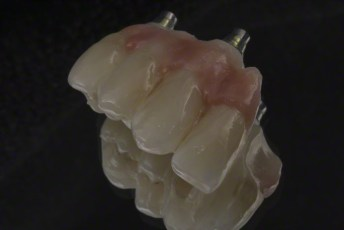 10. Screw Retained Zirconia Implant Bridge