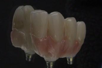 11.Screw Retained Zirconia Implant Bridge