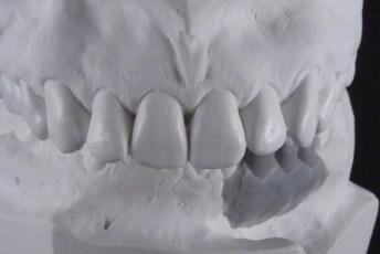 3. Articulated Waxed Models; Screw Retained Zirconia Implant Bridge