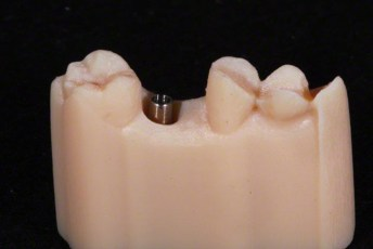 5. 3D Printed Model with ImplantScrew