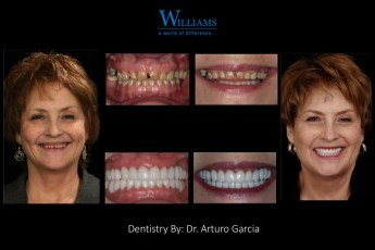 Extreme Makeover by Dr.Arturo Garcia