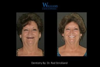 Strickland FOY™ Dentures by Dr.Rod Strickland