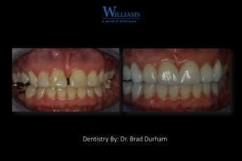 Smile Makeover by Dr. Brad Durham