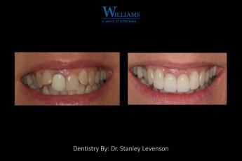 Veneers by Dr. Stanley Levenson