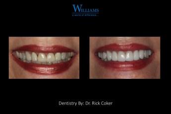 Veneers by Dr. Rick Coker