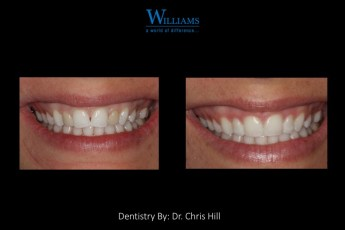 Smile Makeover by Dr. Chris Hill
