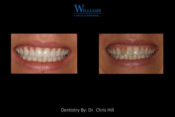 Veneers by Dr. Chris Hill