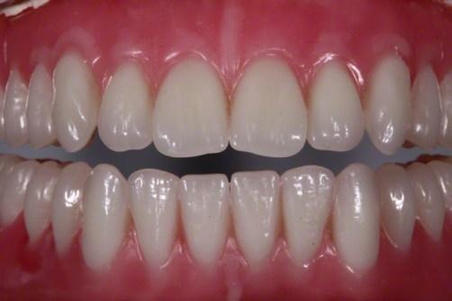 19.Natural FOY™ Dentures