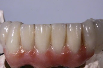 3. Zirconia Implant Bridge