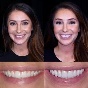 Williams Dental Lab Produces Porcelain Veneers for Bristol Palin