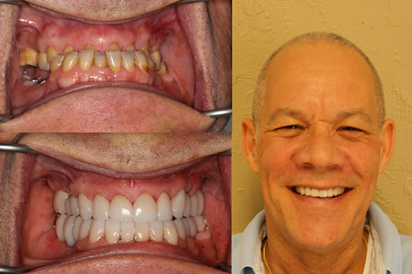 complex full mouth reconstructions