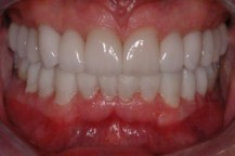 full-mouth-reconstruction-6JPG