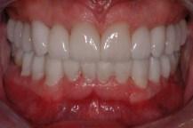 full-mouth-reconstruction-6JPG