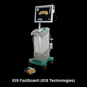 IOS FastScan Scanner