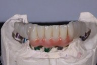 screw-retained-implant-denture7