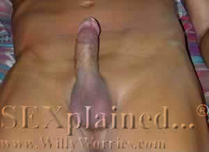 Erect penis picture taken from below