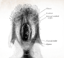 Vulva image showing vestibule, hymen, clitoris, introitus, labia majora, labia minora, mons pubis, external urethral orifice, vaginal entrance and anus