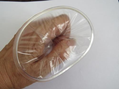 The outer ring of the Female Condom - the man needs to ensure that he places his penis within this ring, to 'wear' the condom that is placed within the vagina to protect against sexual infection and pregnancy