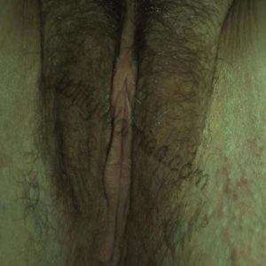 Vulval image - showing distribution of pubic hair over labia major and upper legs, clitoral hood, labia minora, introitus (entrance to vagina and urethral opening), perineum and anal skin tag - also shows some mild folliculitis (inflamed hair follicles - the red spots on the buttock and thigh skin