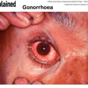 Contaminated eye from accidental exposure by a lab worker, to gonorrhoea - gonococcal eye infection