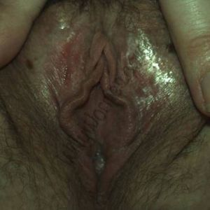 picture of woman holding her labia major open, to reveal her labia minor, clitoral hood, and introitus. Shiny skin merely reflects the light from the camera and the small sore on her right labial join line was not caused by a sexual infection but rough sexual foreplay