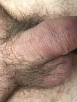 WillyMan 22 - Image of flaccid penis, taken from infront
