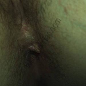 Difficult to see, but this image shows the skin tag formed following 'piles' (haemorrhoids) during pregnancy