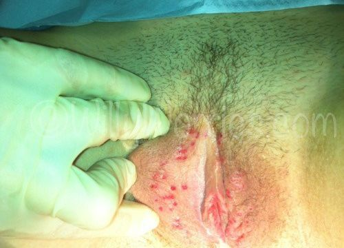 Image of vulval herpes: Herpetic sores across labia minora and labia majora