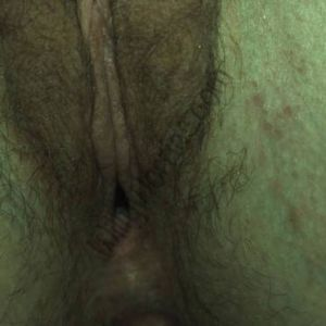 Close up image of woman's closed genital area, and some folliculitis (inflammation of the hair follicles on her left inner thigh