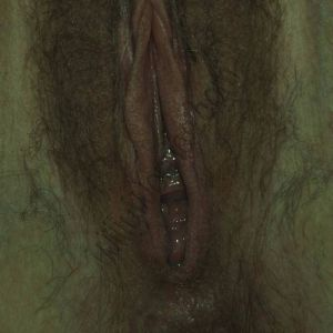 Vulval photo - showing distribution of pubic hair over labia major and upper legs, clitoral hood, labia minora, introitus (entrance to vagina and urethral opening), perineum and anal skin tag