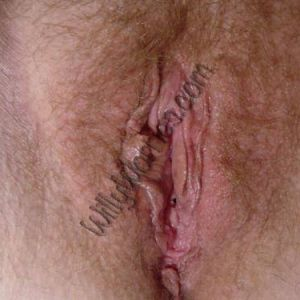 Image showing healthy vulva - pubic hair, labia majora, labia minora, perineum, clitoral hood, and introitus / entrance to the vagina