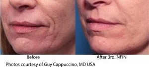 Cappuccino Lower Face