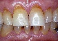 →  O que é o Tratamento de canal do dente? Tudo que você deve saber